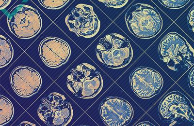 De voordelen van een meertalig brein